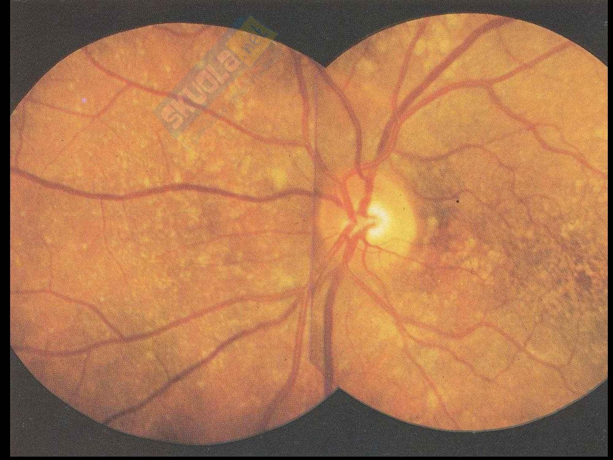 Operazioni con laser agli occhi per diversi tipi di problemi