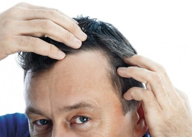 Come scegliere i trattamenti anticaduta dei capelli: consigli utili